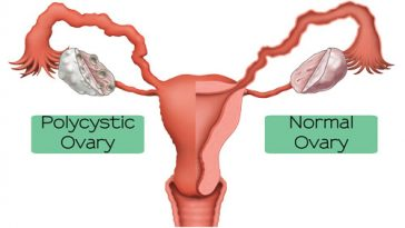 Polysystic Ovarian Syndrome (PCOS)